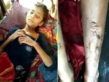 महिला की सहेली ने की बच्ची की पिटाई, पढ़ाने के नाम पर ले गई थी अपने घर, लंका थाने में FIR