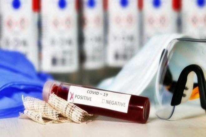 वाराणसी में शुक्रवार की सुबह मिले 12 नए कोरोना पॉज़िटिव मरीज़
